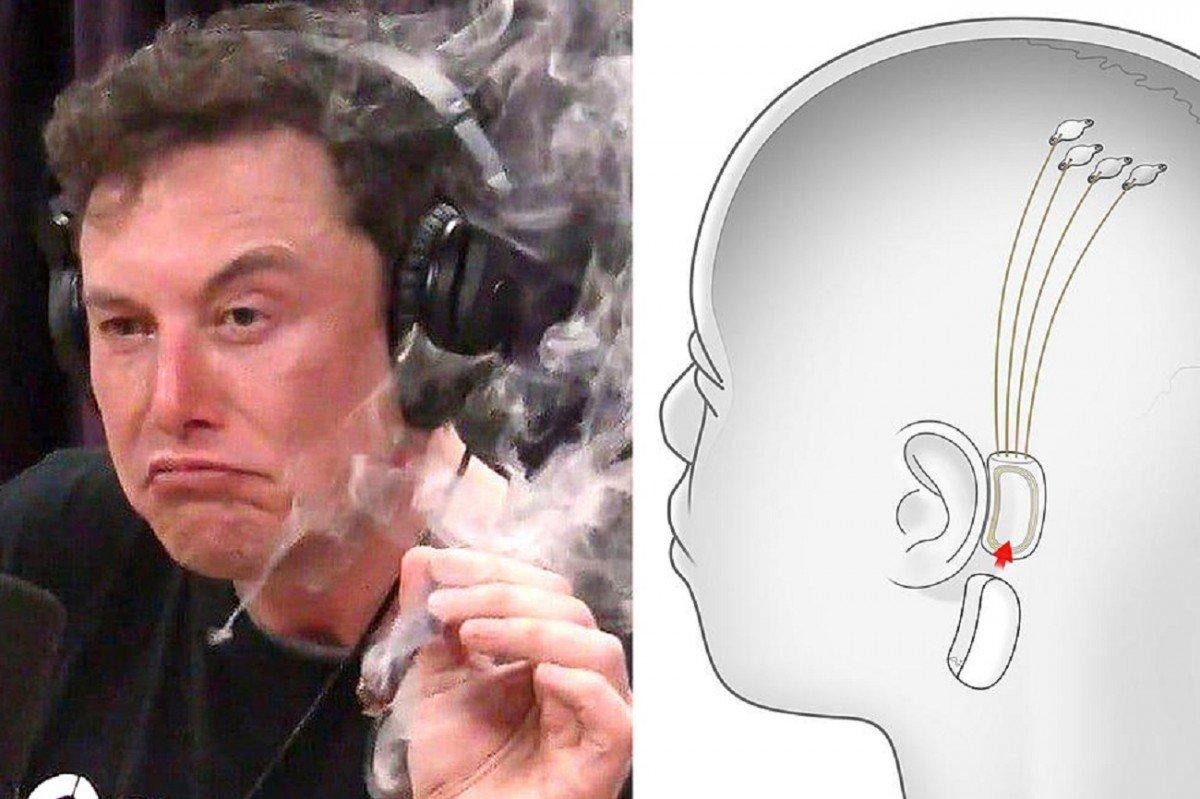 Elon Musk dit que Neuralink pourra diffuser de la musique directement dans le cerveau